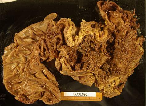 Toxic colon picture 1