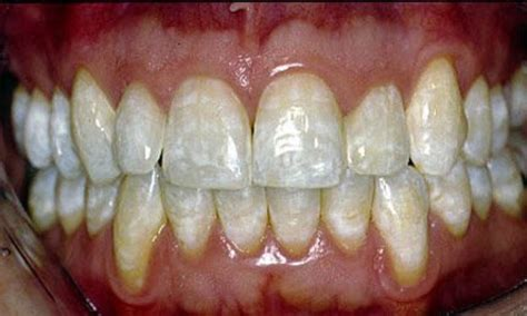 discolored teeth fluorosis picture 1