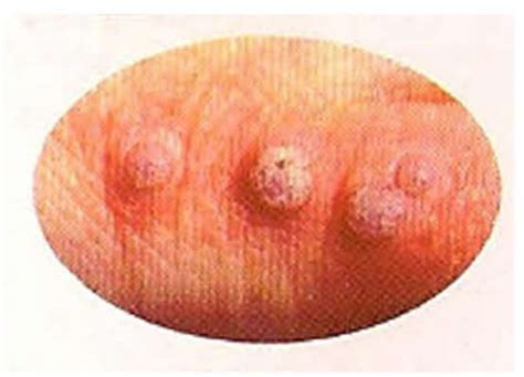 do genital warts go away on there own picture 8