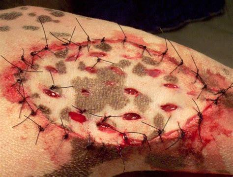 animal skin graft. picture 1