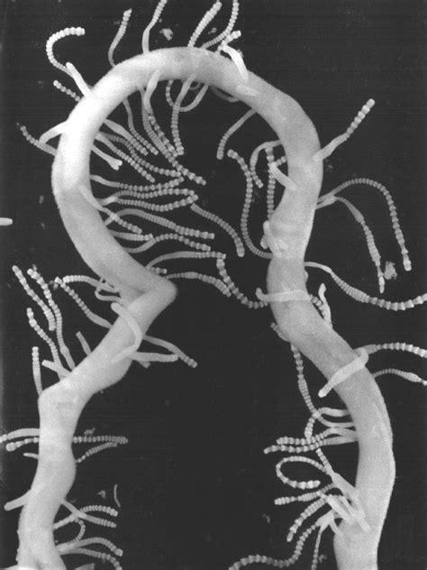 Guinea pigs intestinal worms picture 13