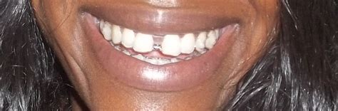 align of teeth after braces picture 7
