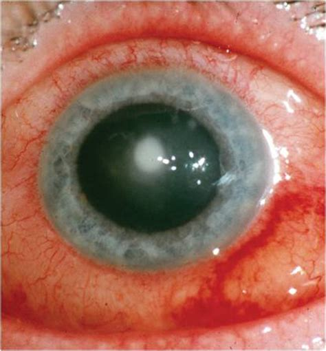 contact lense ers getting bacterial infection in eyes picture 6