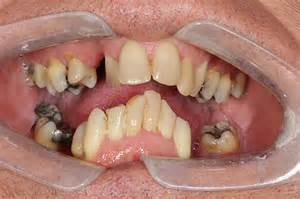 dental correcing teeth from overbite picture 3