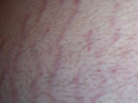 can stretch mark go away picture 2