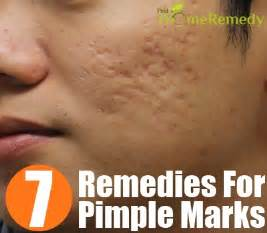 mabisang gamot sa pimple marks treatment picture 2
