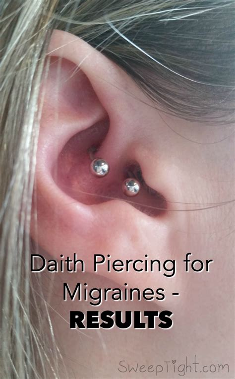 ear piercing to relieve anxiety picture 6