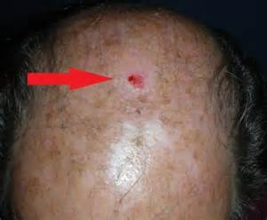 head acne as a symptom of cancer picture 8