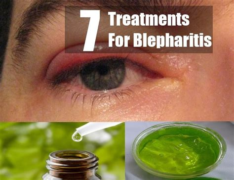 aayurvedic treatment for eyelid wart picture 9