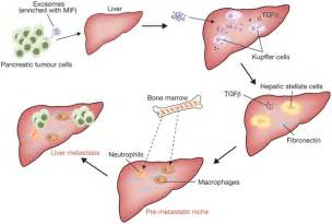 metastatic liver cancer treatment picture 10