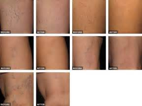 sclerotherapy picture 6
