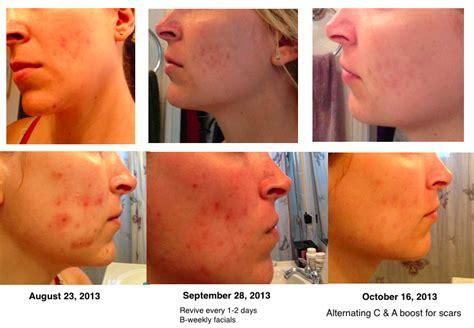 sauna for acne picture 1