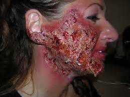 face skin care holes picture 5