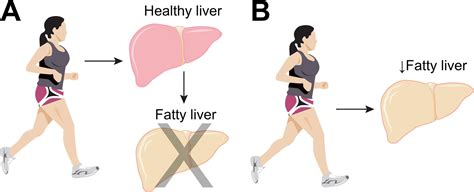 fatty liver exercise picture 15