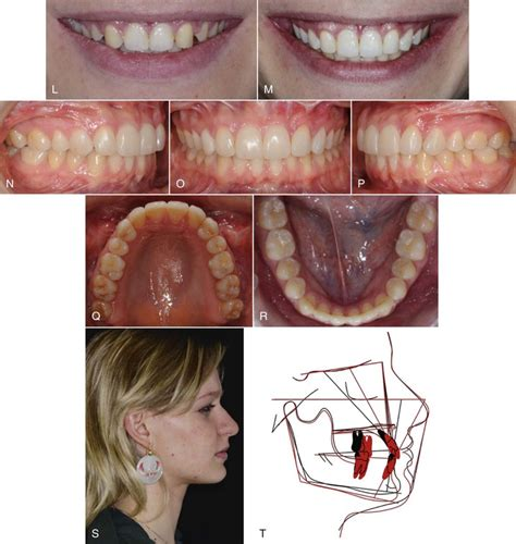 exposure and ligation of maxillary h picture 8