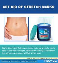 get rid of stretch marks picture 1