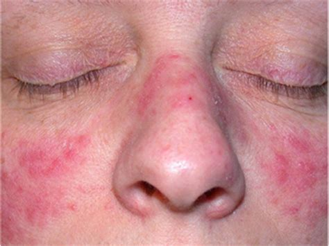 rosacea on nose picture 5