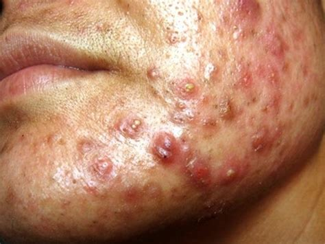 can you use prepartion h for acne ? picture 3
