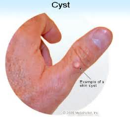 epididymis cyst alternative treatment picture 3
