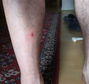 herpes simplex on my leg picture 9