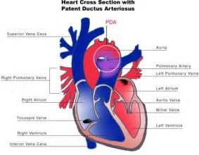 Fetal blood flow picture 7