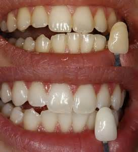 teeth whitening picture 5