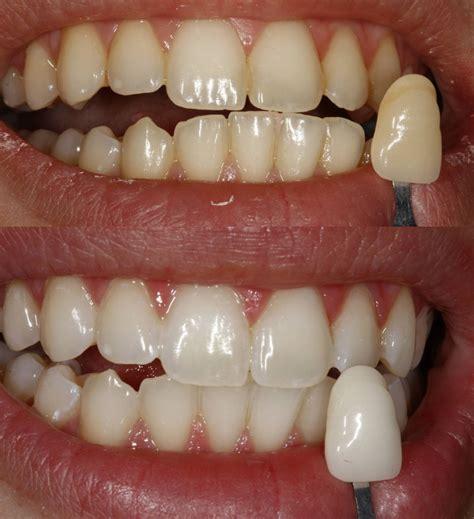 teeth bleaching picture 3