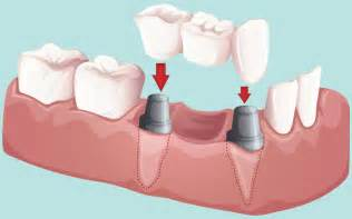 cost of a bridge teeth picture 6