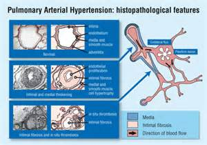 Pulmonary hypertension picture 7