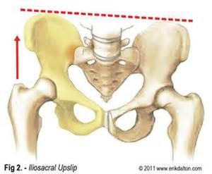 sacroiliac joint supplements picture 13