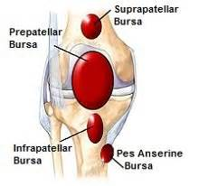 pain relief for suprapatellar joint wffusion picture 5