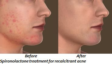 aldactone and acne picture 5