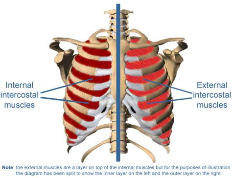 intercostsal muscle strain picture 1