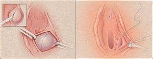 can essiac tea help with vaginal cysts picture 10