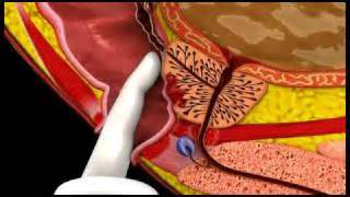 Thehealthyprostate picture 5