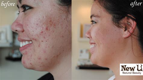 herbalist for acne las vegas picture 9