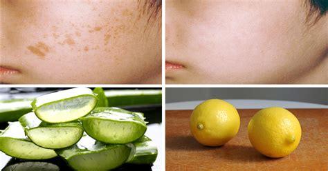 do antibiotics help fight acne picture 13