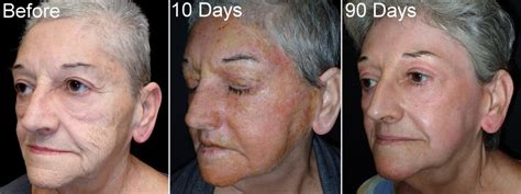 fraxel for acne scars picture 17