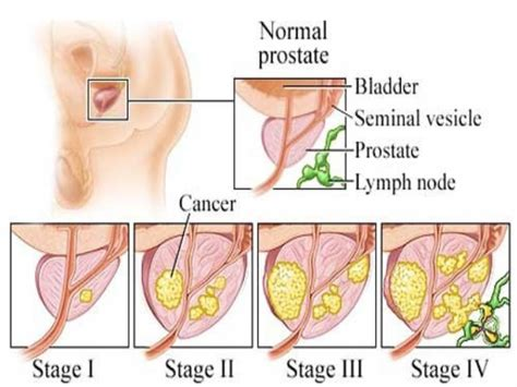 Can prostate cancer people have picture 9