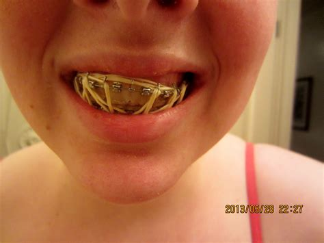 rubber bands on lips picture 1