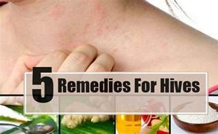 how to cure hives picture 1
