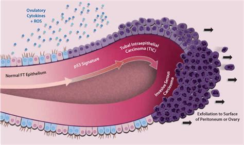 ovarian cancer side effect of fertilplus picture 9