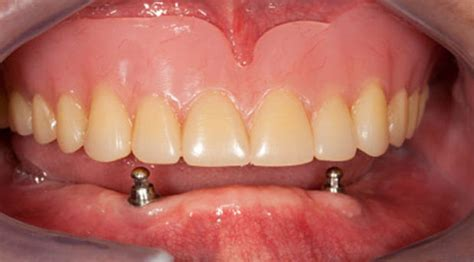 false teeth permanent killeen tx picture 10