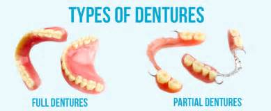 different types of false teeth picture 3