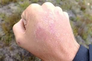 skin sunburns picture 11