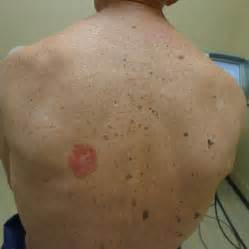 cure skin cancer on your back picture 3