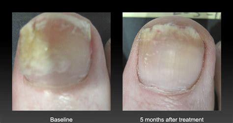 laser treatment for fungal toenails picture 5