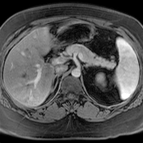 liver anatomy ct picture 11