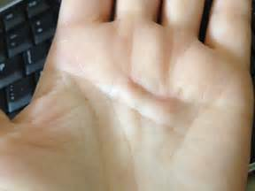 sore p under skin on hand picture 13