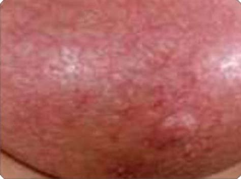 inflammatory breast cancer pictures 2014 picture 6